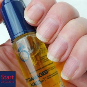 Herome-damaged-nails-yustsome3