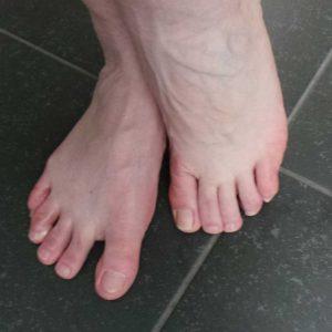 Pedifresh-voeten-zweten-geur-stinken-yustsome-review