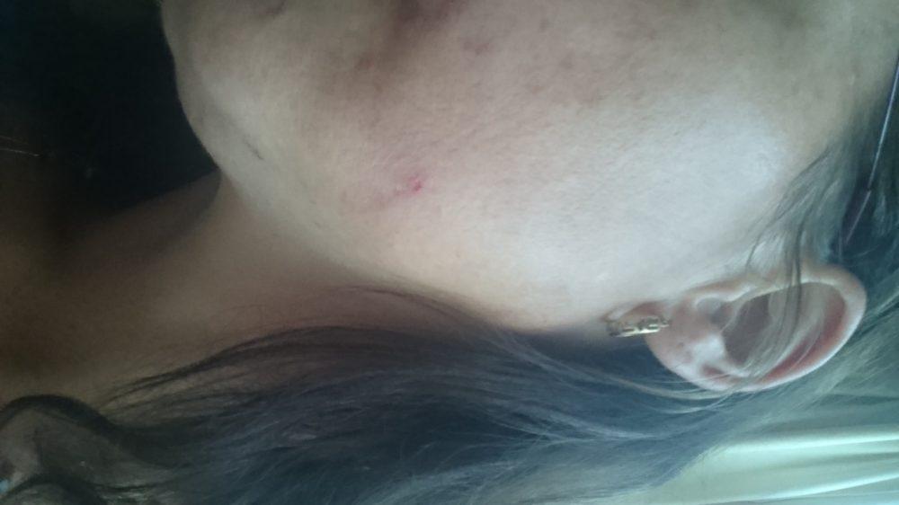 Hannah, huidcoach, brilliant, touch, premium, elixer, huidverbetering, huidaandoening, review, beauty, blog, blogger, yustsome
