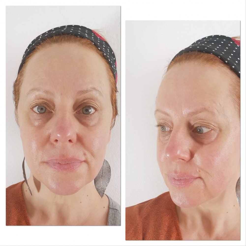 Botuline, toxine, ampul, gj Cosmetics, Botox, argireline, huidverbetering, huid, mooier, beautysome, review